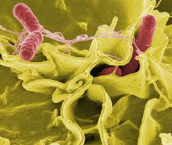 Salmonella invades human cells: Color-enhanced scanning electron micrograph showing Salmonella typhimurium (red) invading cultured human cells.