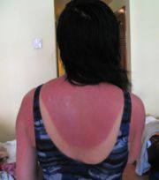 Ouch, she should have used more sunscreen: Courtesy  Wikipedia