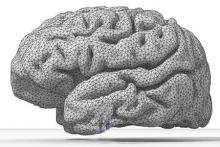 Help for old brains: Help for memory disfunction   photo from wikimedia