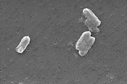 Citrobacter freundii: can have concentrations of uranium in their bodies 300 times higher than in the surrounding environment.