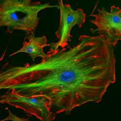 Fluorescent cells: Bovine pulmonary arthery endothelial cells