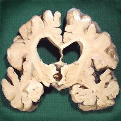 A slice of a brain infected with Alzheimer's: The disease shrinks brain tissue and leads to severe memory loss. Photo by AJC1 at Flickr.com