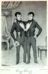 Twin-ed: Chang (left) and Eng were a famous set of conjoined twins from the 1800s. They were known as Siamese Twins, but medically and ethically, such sibilings are better called conjoined twins.