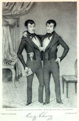 Adult siamese twins pictures