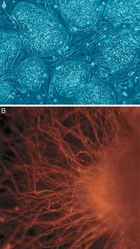 Human embryonic stem cell differentiation: A: Cell colonies that are not yet differentiated. B: Nerve cell