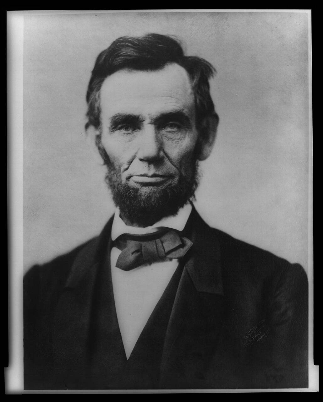 Did Lincoln Have A Rare Cancer One Researcher Thinks So