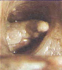 A cancerous growth in a windpipe.: Photo courtesy of District of Columbia Dept. of Health.