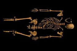 Studying bones: Preliminary studies show King Richard had severe scoliosis, but not the hunchback that his post-reign critics want us to believe.