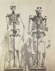 Humans have longer legs than gorillas today, but this wasn't always the case.: Photo by Robert Fenton, courtesy National Gallery of Art and Victoria and Albert Museum