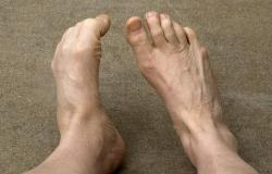 Does this make my feet look baboonish?: Some folks among us have more ape-like feet than others.